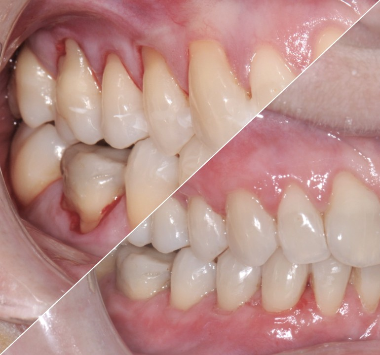 Reconstruction osseuse et gingivale